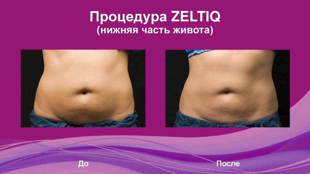 Идеальное тело и лицо с клиникой «Медиал»